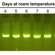 PCR gel electrophoresis